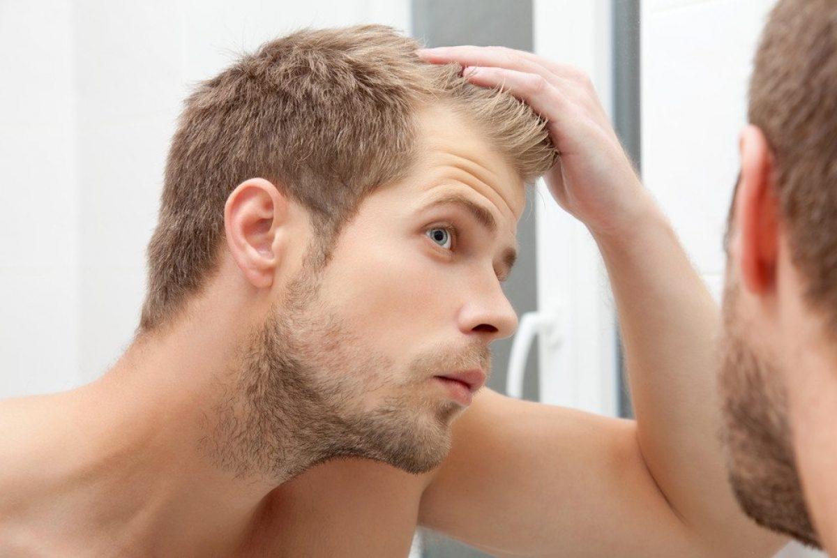 Männer geheimratsecken frisur Frisuren mit