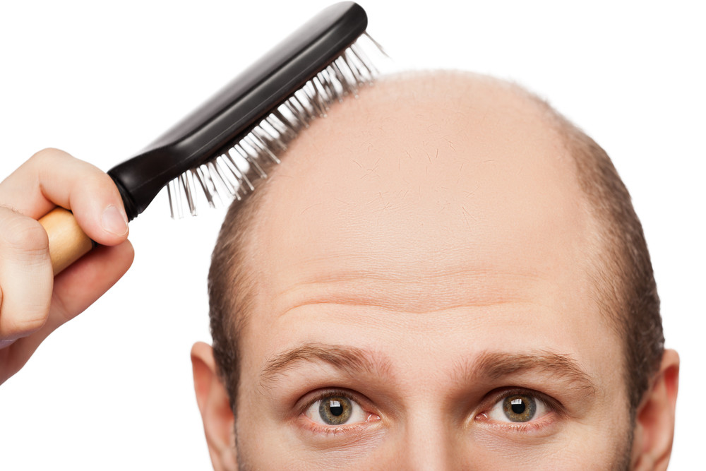 Zur Glatze stehen oder etwas tun