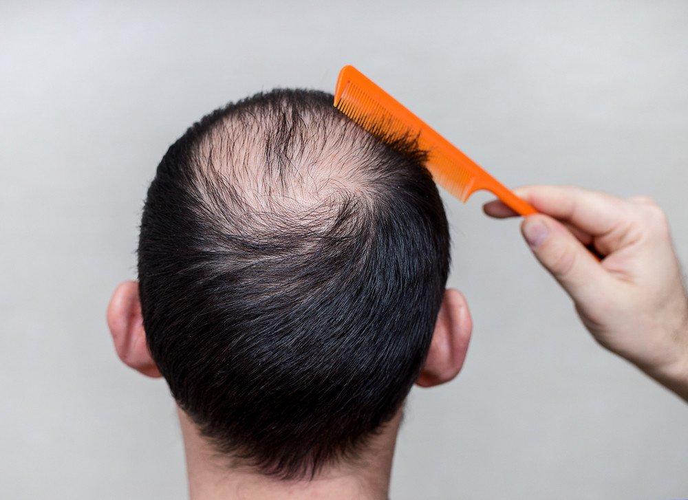 Alopezie Haarausfall Frisuren Magazin