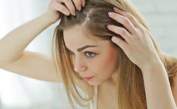 Gereizte Kopfhaut Symptome Jucken und Auschlag Nina Buday shutterstock.com